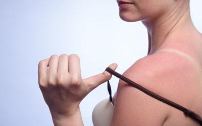 Sonnenbrand – was tun?